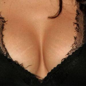 Elimina las estrías de tus senos